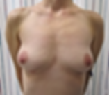 BBA2 Anterior.png