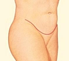 Abdominoplasty_6.png