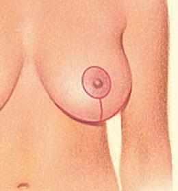 Breast Lift 4.png