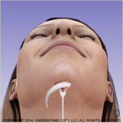 Chin Implant 1.png