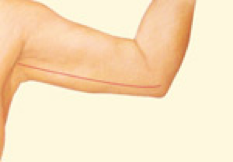 Brachioplasty 2.png