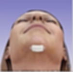 Chin Implant 2.png
