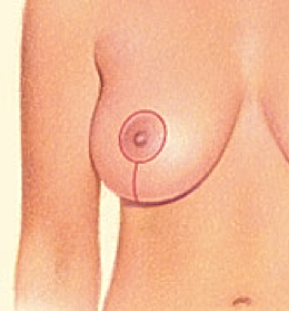 Breast Lift 2.png