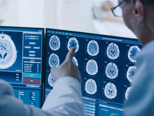 Alzheimer's Research Pushes On Despite Pandemic