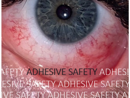 Part 2: Adhesive Safety