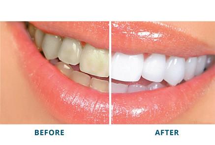 MUST HAVE TEETH WHITENING: NO TRAYS- Dentist strength Whitening