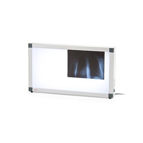 Негатоскоп флуоресцентный Армед 2-кадровый