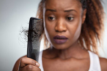 Hairloss-black-lady.jpg