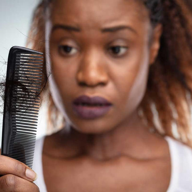 Is there a connection between coronavirus and hair loss?