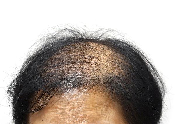 Womens-hair-lossweb.jpg