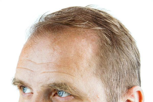 Mens-hair-loss-web.jpg