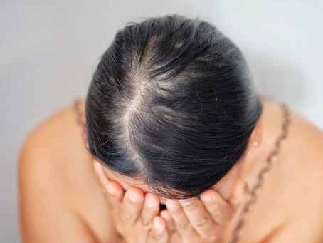 10 Frequently Asked Questions about COVID and Hair Loss
