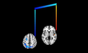 Come la musica plasma il nostro cervello