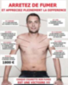 Arrêter-de-fumer-hypnose-Besançon-25
