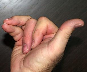 Alt Nos Hand Posture.jpg