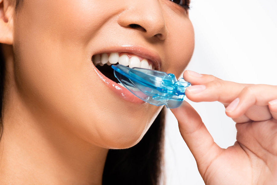 Mouthguard / Bruxism