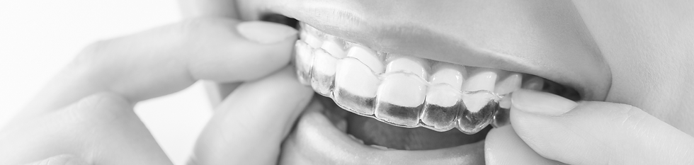 active-aligners-banner.png