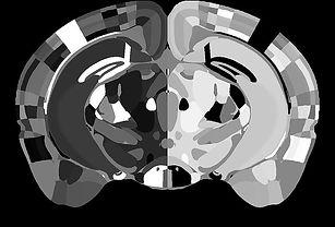 Registered mouse brain to Allen Mouse Common Coordinte Framework v3.0