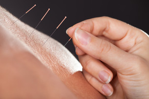 Does Acupuncture Really Work?