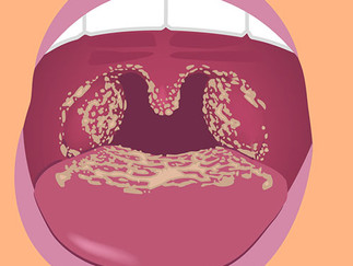 Candida Can Cause Dysphagia: A Closer Look.