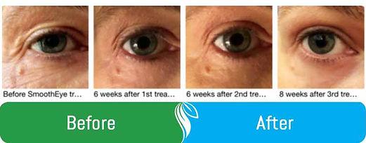 before-after-eyeimages.jpg