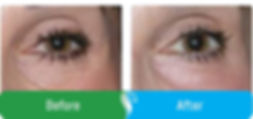before-after-eyeimages2.jpg