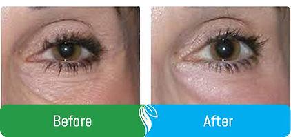 before-after-eyeimages2.jpg