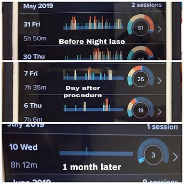 Night Lase graph.JPEG
