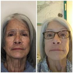 4D Face Lift/ Frac Resurfacing