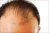 493x335_mens_health_balding_magazine.jpg