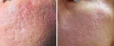 acne_scars.jpg