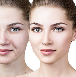 Woman's face before and after rejuvenation..jpg