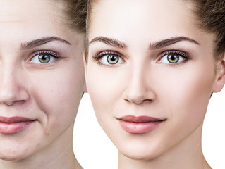 How long does it take to see results from Micro needling (skin rejuvenation)?
