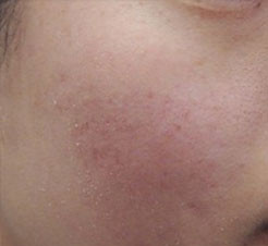 Acne Scarring After Micro Needling - Skin Rejuvenation