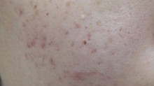 Micro Needling - Acne Scar