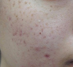 Acne Scar before Micro Needling - Skin Rejuvenation