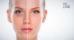 skin-hyperpigmentation.png
