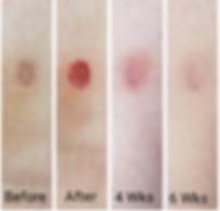cit, scar removal, kilmarnock, ayrshire