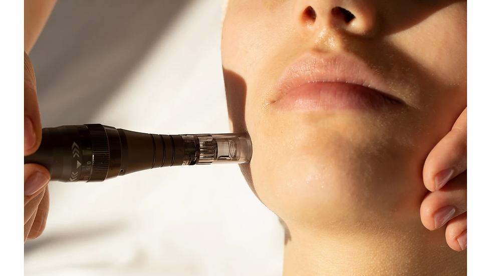 Non-Invasive Microneedling Facial