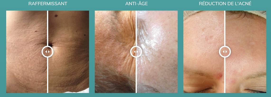 résultat anti-âge mésothérapie sans aiguille