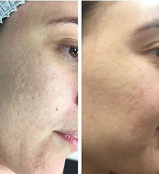 No filter ❌_X3 sessions of skin needling