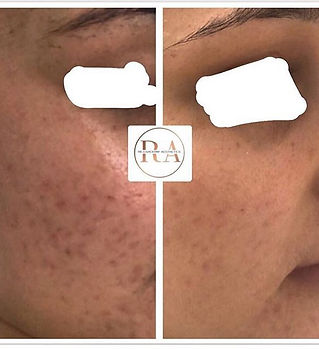 Pitted acne scars 🙅🏼♀️_X 4 sessions o