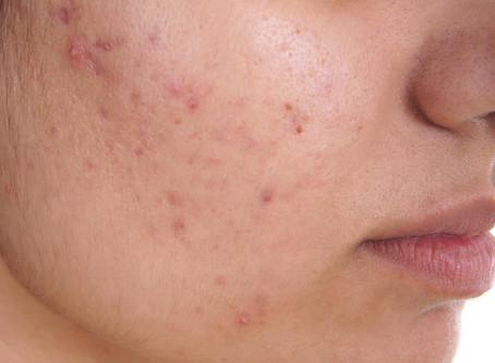 5 astuces pour soigner son acné naturellement