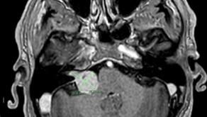 ניתוח לבסיס הגולגולת: כריתת שוואנומה וסטיבולרית-vestibular schwannoma