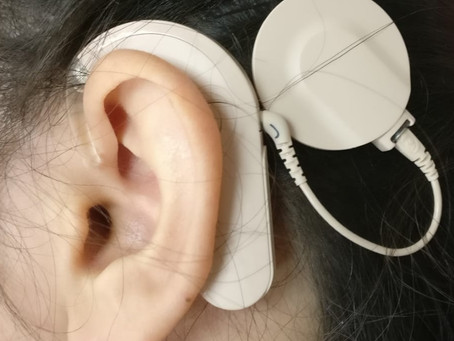 שתל שבלול: מעולם הדממה חזרה לעולם השמיעה.  Cochlear implant