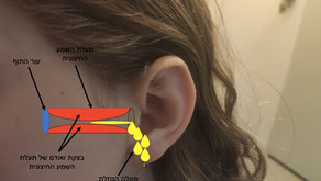 הקיץ בשיאו ודלקת האוזן החיצונית כאן. הטיפול בדלקת אוזן חיצונית חריפה (Acute Otitis Externa)