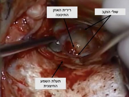 סגירת נקב בעור התוף - טימפנופלסטי (Tympanoplasty)