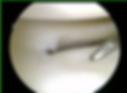 lat compartment artrhorscopy.png