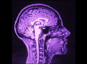 BrainScanfMRI_Layne.jpg