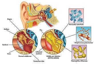 otitis-media.jpg
